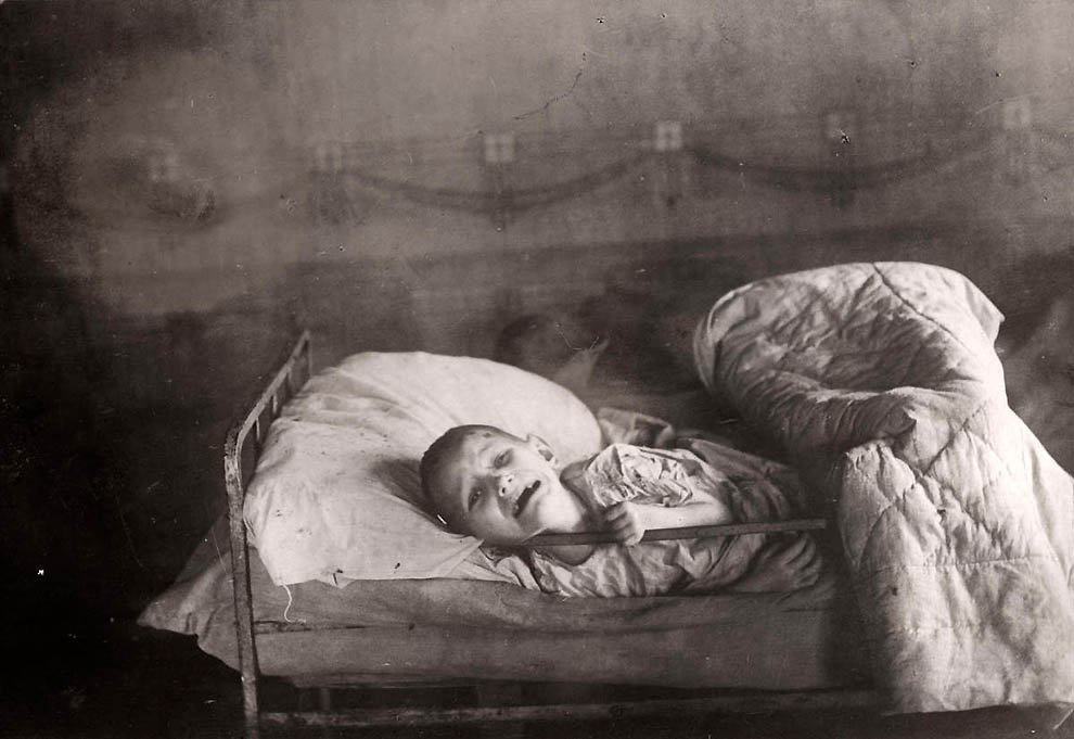 Умирающий от голода ребенок в Поволжье.